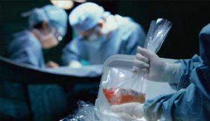 Укратко о трансплантацији